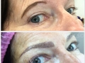 brow after